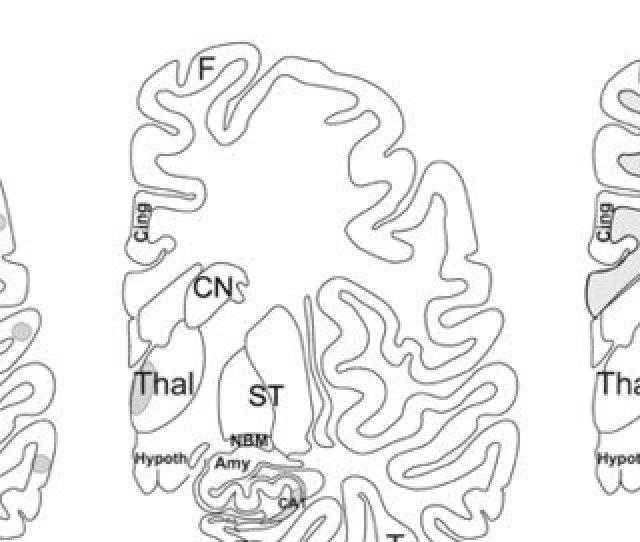 Schematic Representation Of Multi Infarct Dementia Strategic Infarct Dementia And Subcortical Vascular Encephalopathy