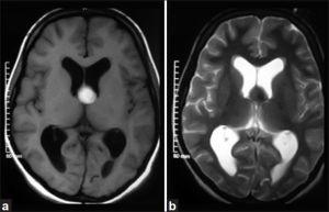 MRI brain (axial view) (a) Homogenously hyperintense