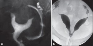 (a and b) Hysterosalpingography showing duplication