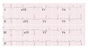 The EKG 4 years before presentation (a) with right bundle