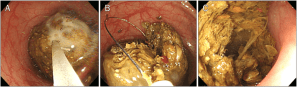 Endoscopic findings (A) CocaCola is injected to the fecaloma using | Download Scientific