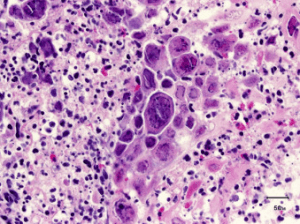 Characteristic Herpes simplex intranuclear inclusions Some cells are | Download Scientific