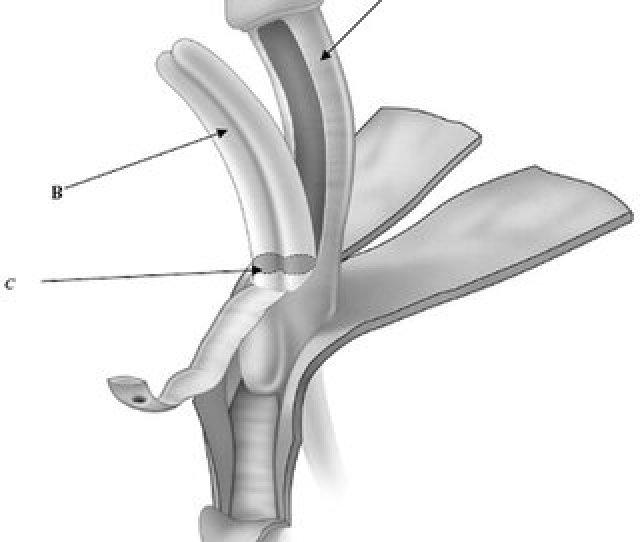 Ventral Nerve Sparing Clitoroplasty Anatomical Diagram Of Cross Section Of Clitoral Shaft