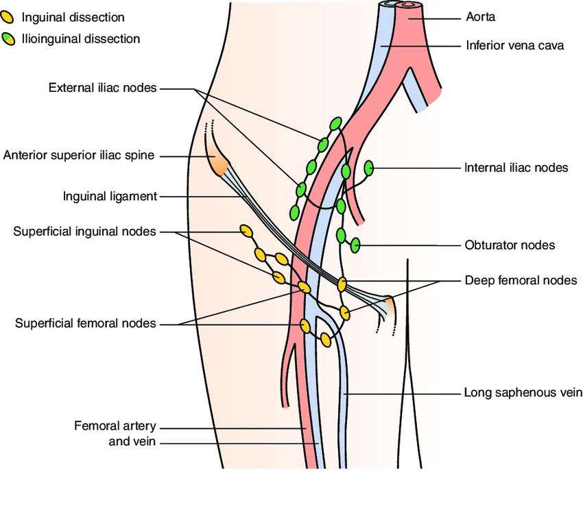 Portacaval Lymph Node Location Diagram