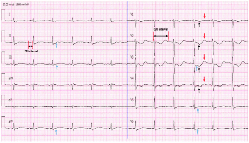 Twelve-lead electrocardiogram taken on admission from a 57-year-old man with severe diarrhea, paralysis of the lower extremities, weakness, inability to walk, and severe hypokalemia (1.31 mmol/L; normal value: 3.5-5.5 mmol/L). Electrocardiography shows bradycardia, a prolonged PR interval, a prolonged QU interval, ST-segment depression, T wave inversion, U waves best seen in the precordial leads (particularly in leads V2-lead 4), and slurring of T waves into U waves (leads II and III), which are consistent with the diagnosis of hypokalemia. Red arrowheads indicate prominent U waves, black arrowheads indicate T wave inversion, and blue arrowheads indicate ST-segment depression.
