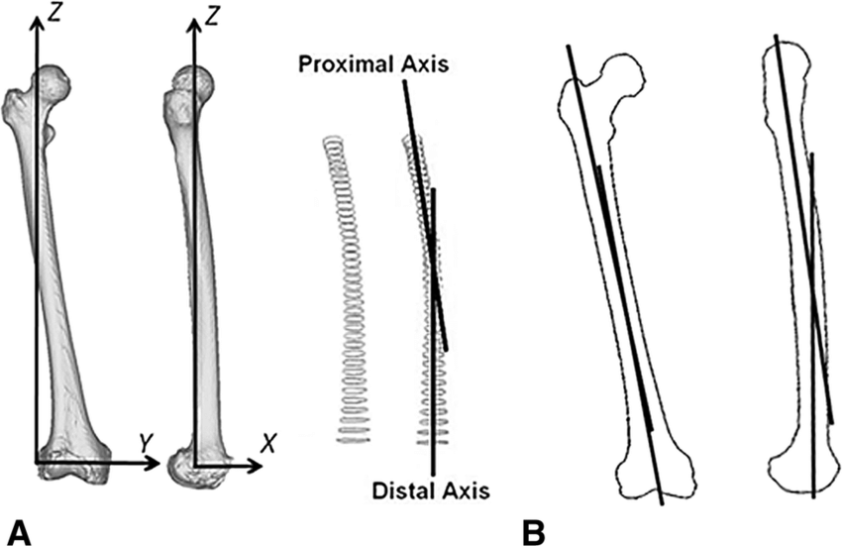 Definition of the proximal and distal axes (a) and ...