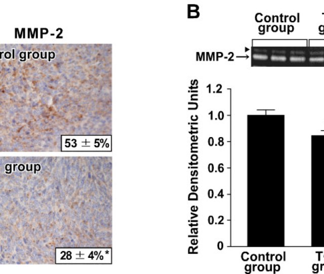Effect Of Tgz On The Expression And Activity Of Mmp 2 Within The Tumor A Immunohistochemistry For Mmp 2 Was Performed Using The Primary Tumor Sections