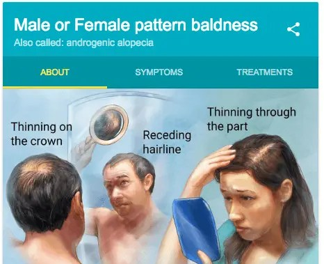 male patterned baldness