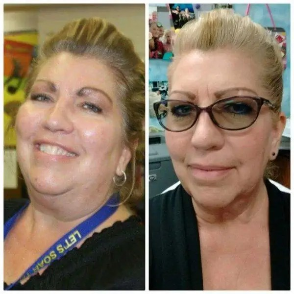 sharilyn wp thyroid weight loss before after