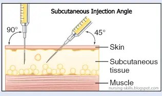 subcutaneous b12 injection in the skin
