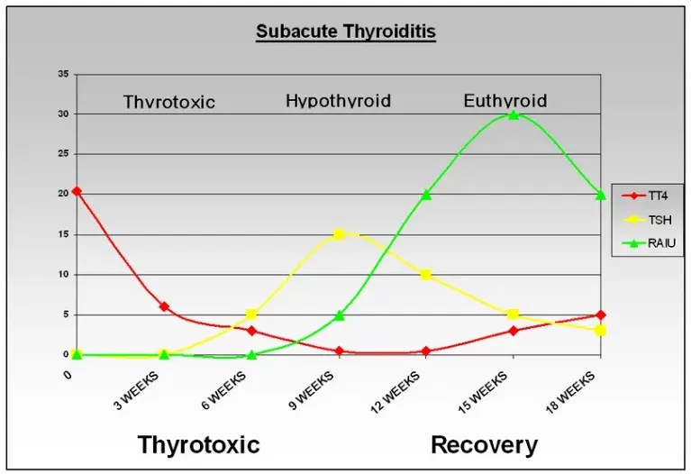 Subacute thyroiditis graph with lab tests over time