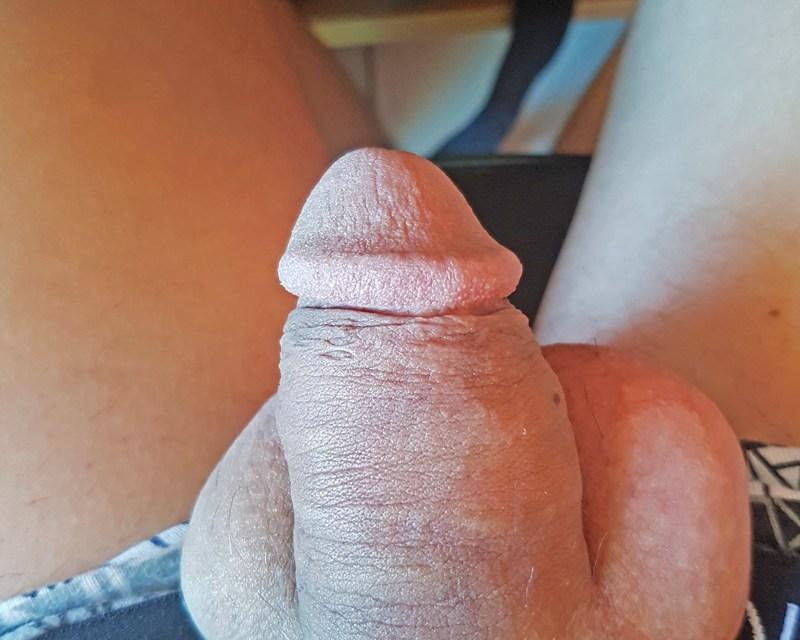 La piel cada vez se amontona más detrás del glande.