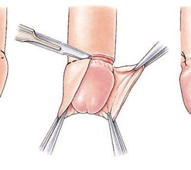 ¿Cuáles son los estilos de circuncisión y por qué es importante conocerlos?