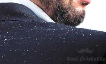 The Primary Cause For Dandruff