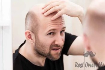 Bald man looking mirror at head baldness and hair loss Why Your Hair Stops Growing?