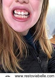 Colgate Optic White Mouthwash 1
