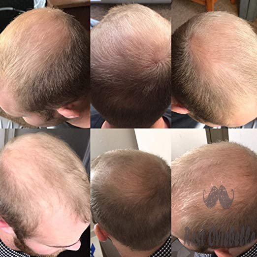 Men's Rogaine 5% Minoxidil Customer Image 1
