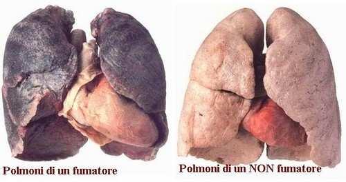 asma da fumo