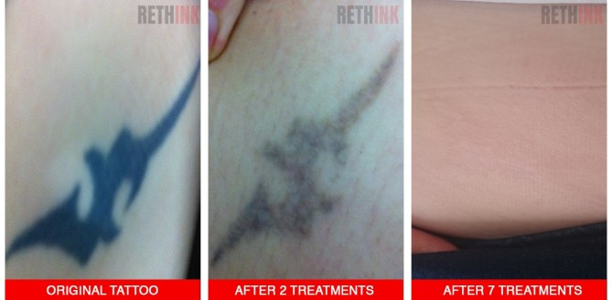 stomach tattoo removal