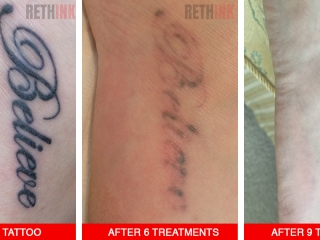 Foot tattoo removal photo