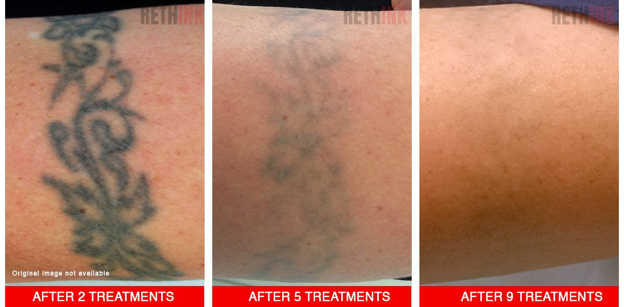 armband tattoo removal