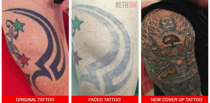 upper arm tattoo removal and coverup