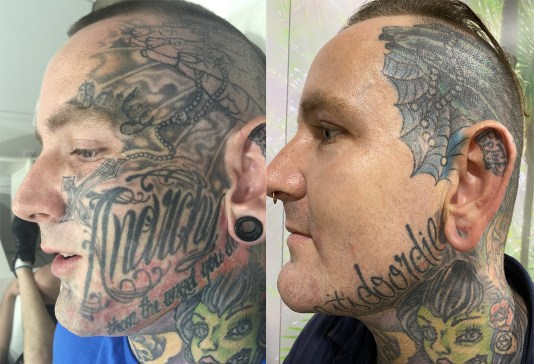 face tattoo laser removal