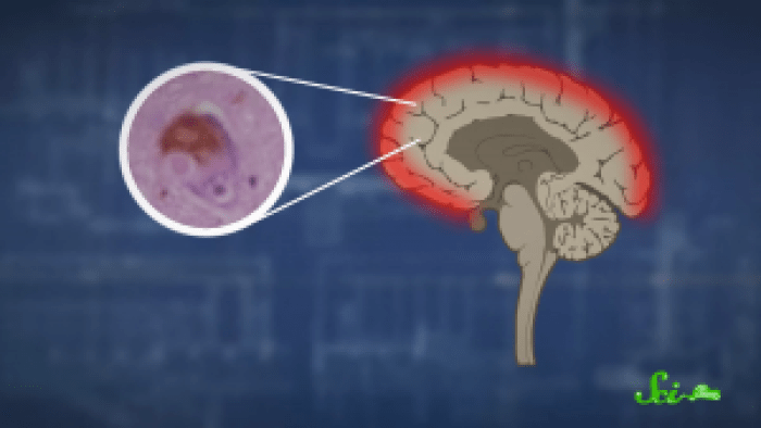 Protein deposits known as Lewy bodies build up along key points of the brain