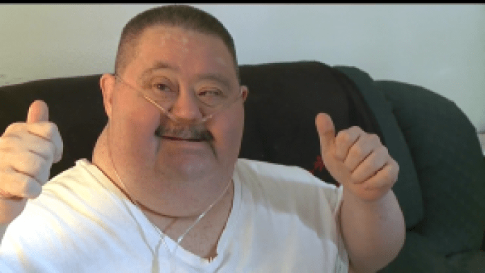 Joey Wittkugle turns 62 this June, even after doctors said he wouldn't live to age 11