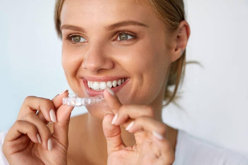 Mulher com dentes brancos encaixando molde de clareador dental.