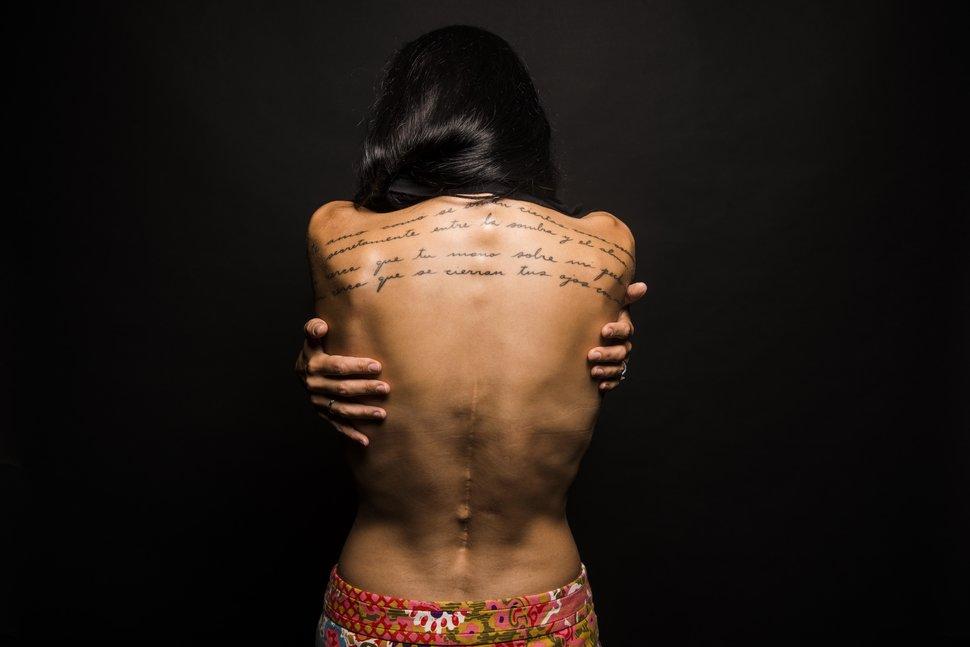Women Displaying  Their  Scars!