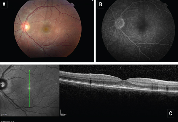 Spectral Domain OCT In Managing Uveitis