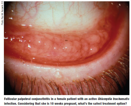Conjunctival Follicular And Conjunctivitis Chemosis