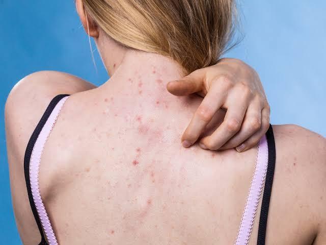 Best steroid cream for rash