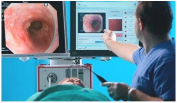 pós graduação endoscopia digestiva
