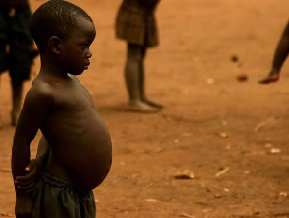 Kwashiorkor. Image credit chronicle.co.zw