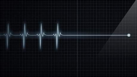 A vida é feita de curvas. Quando pinta a linha reta é porque você está morto