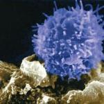 Markeri imunologici: Gene care controlează celulele T (în imagine) şi celulele NK au niveluri de exprimare mai ridicate la copiii cu autism.