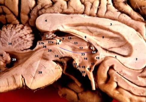 Glándula pineal / Wikimedia Commons