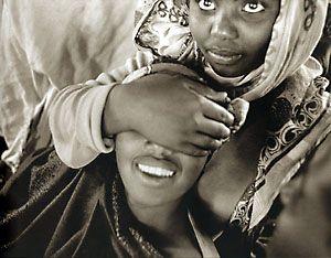ablación africa