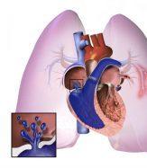 hipertensión arterial pulmonar hereditaria