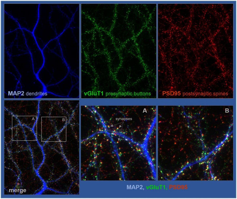 Una proteína cerebral promueve la interconectividad neuronal