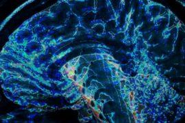 uam -una proteína cerebral promueve la interconectividad neuronal