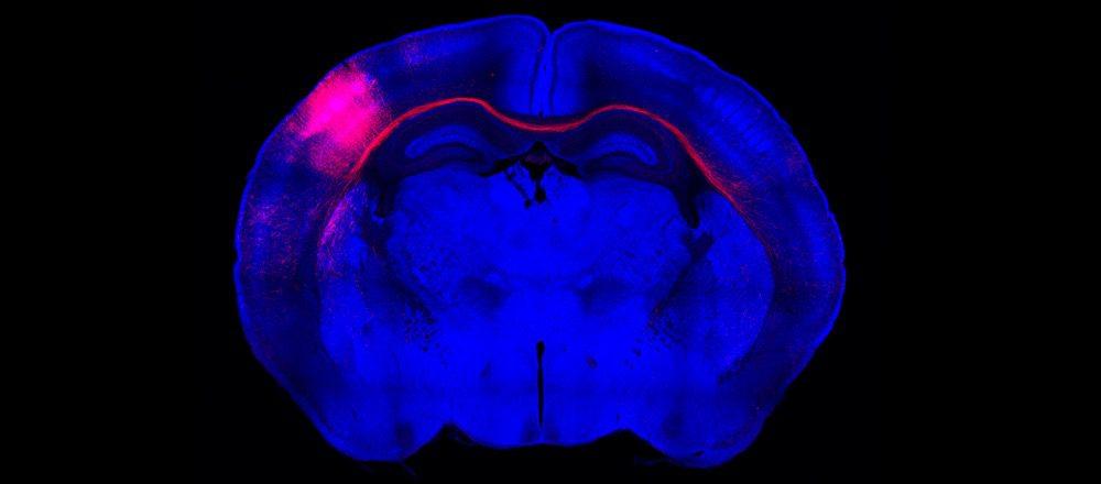 Cerebro en desarrollo