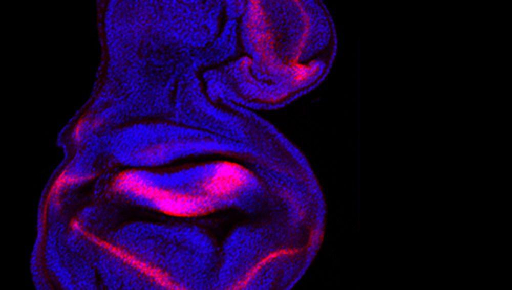 irb , se regula el tamaño y la forma de un órgano