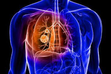uma, nuevos marcadores para el diagnÓstico y pronÓstico del cÁncer de pulmÓn