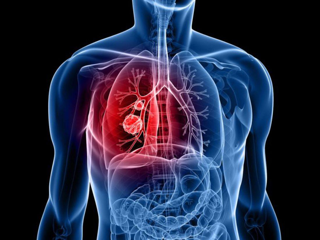 el cambio que hace ;curable un cáncer de pulmón