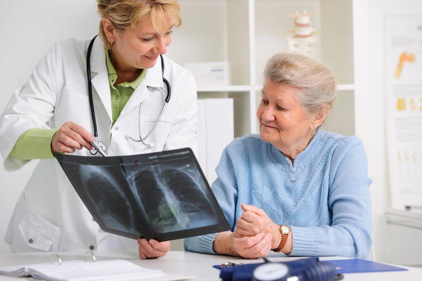 """el cambio que hace """"curable"""" un cáncer de pulmón"""