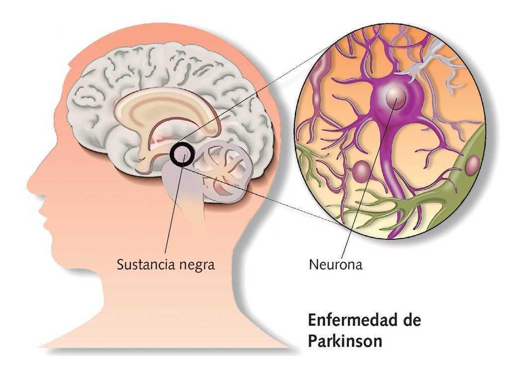 """investigadores de etu """"leti"""" con la enfermedad de parkinson"""