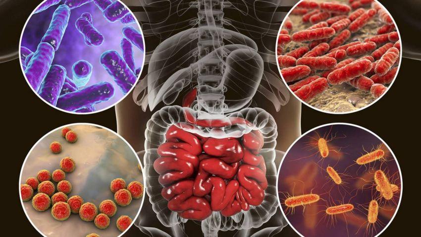 sobrecrecimiento bacteriano un gran problema para el intestino